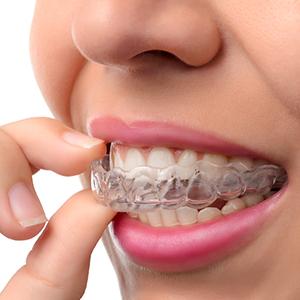 invisalign dentist pasadena