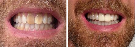 pasadena teeth whitening