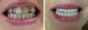 porcelain dental crowns in pasadena